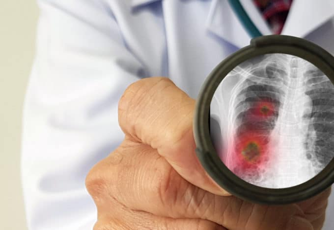 Doctor examining patient's lung